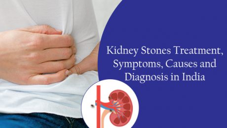 Kidney Stones Treatment Symptoms Causes and Diagnosis in India