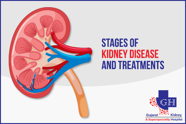 Stages Of Kidney Disease And Treatments Gujarat Kidney Hospital